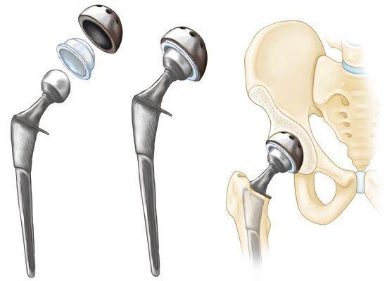 ТРЯБВА ЛИ ДА СЕ ЩАДИ КРАКА СЛЕД СМЯНА НА ТАЗОБЕДРЕНАТА СТАВА ? | ✅ Д-р Стоян Арнаудов - Ортопед | Травматолог ⭐️